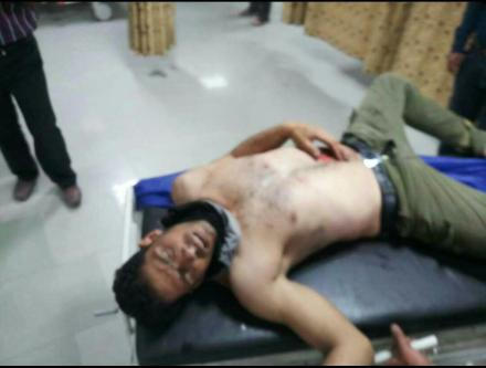 kazeroon_injured3